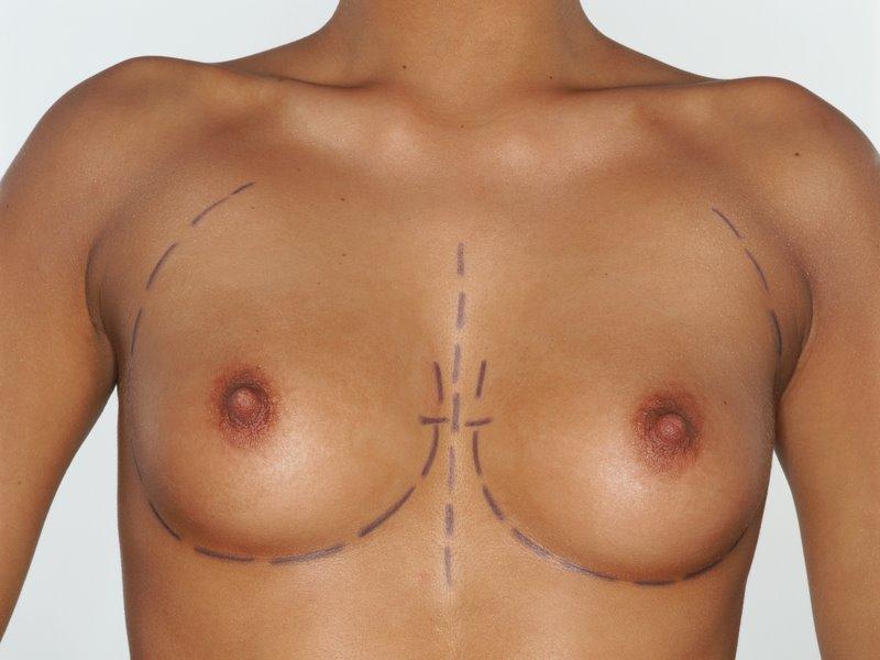 Die plastischen Operationen in minske auf die Brust